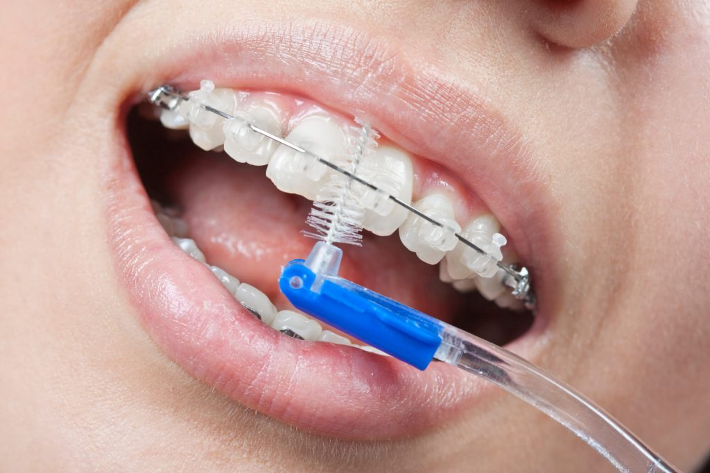 Where can I get Childrens Braces Mint Hill?