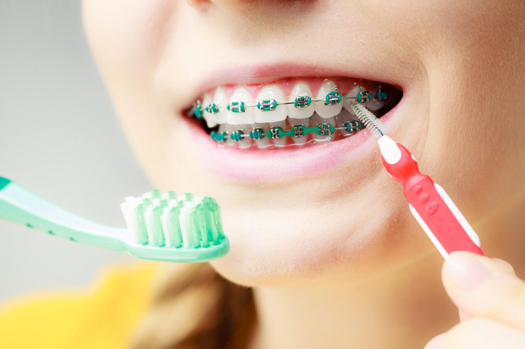 brushing with braces for Kids Dental Cleaning Waxhaw